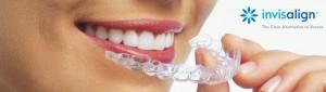 invisalign-orthodontics